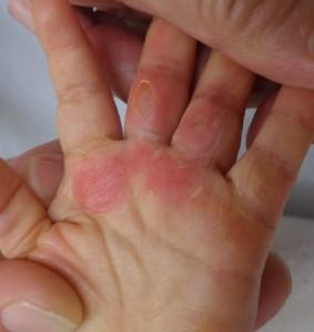 湿潤療法 加療後6日