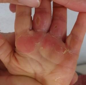 湿潤療法 加療後9日
