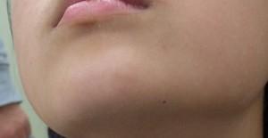 顎・加療後14日