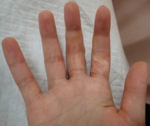 初診時(掌側・水疱膜切除後)