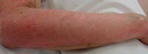 湿潤療法 加療後10日(側面)