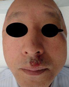 湿潤療法 加療後11日(正面)
