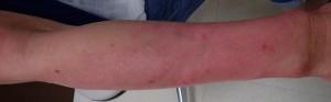 湿潤療法 加療後15日(正面)
