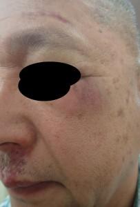 湿潤療法 加療後19日(側面)
