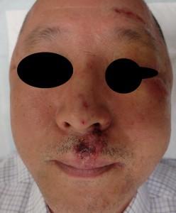 湿潤療法 加療後3日(正面)