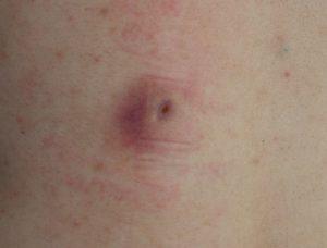 粉瘤(アテローム)摘出 術後12日