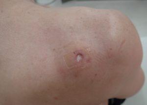 粉瘤(アテローム)摘出 術後3日