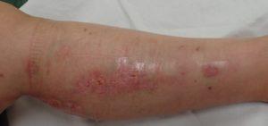 湿潤療法 加療後10日(1)