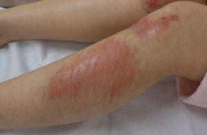 湿潤療法 加療後1日(下腿側面)