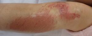 湿潤療法 加療後1日(下腿正面)