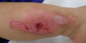 湿潤療法 加療後11日(下腿)