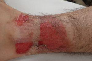初診時(水疱膜切除後・右下腿)