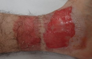 初診時(水疱膜切除後・左下腿)