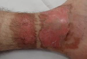湿潤療法 加療後4日(左下腿)