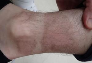 湿潤療法 加療後50日(右下腿)