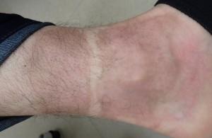 湿潤療法 加療後50日(左下腿)