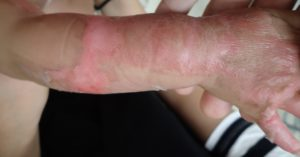 湿潤療法 加療後3日(右上肢)