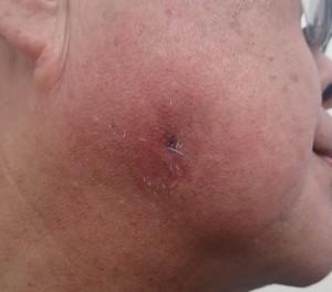 粉瘤(アテローム)摘出 術後18日