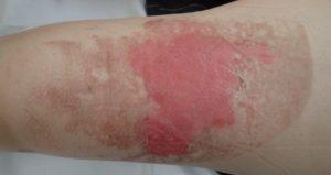 湿潤療法 加療後3日