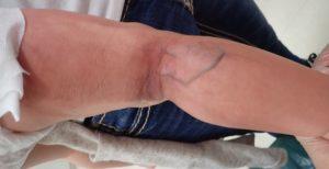 初診時(下肢)