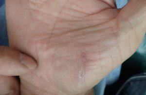 湿潤療法 加療後10日(手)