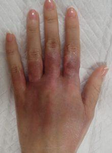 湿潤療法 加療後14日