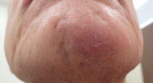 湿潤療法 加療後10日(顎)