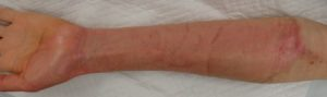 湿潤療法 加療後7日(左前腕掌側)