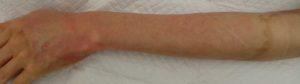 湿潤療法 加療後7日(左前腕背側)