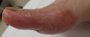 湿潤療法 加療後21日(足側面)