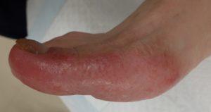 湿潤療法 加療後13日(足側面)
