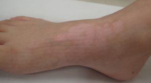 湿潤療法 加療後3か月(足)