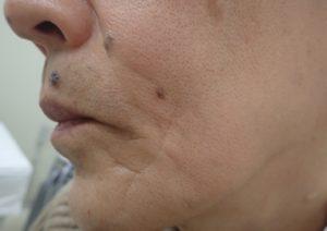 粉瘤(アテローム)摘出 術後2年8か月