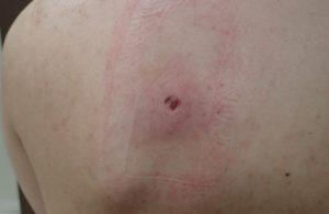 粉瘤(アテローム)摘出 術後4日