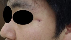 粉瘤(アテローム)摘出 術後11日