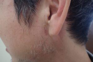 粉瘤(アテローム)摘出 術後1か月半