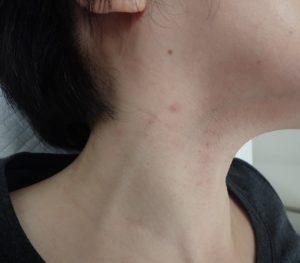 術後1か月(右側)