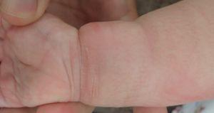 加療後4日(前腕2)