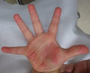 加療後18日(右手)