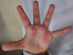加療後8日(左手)