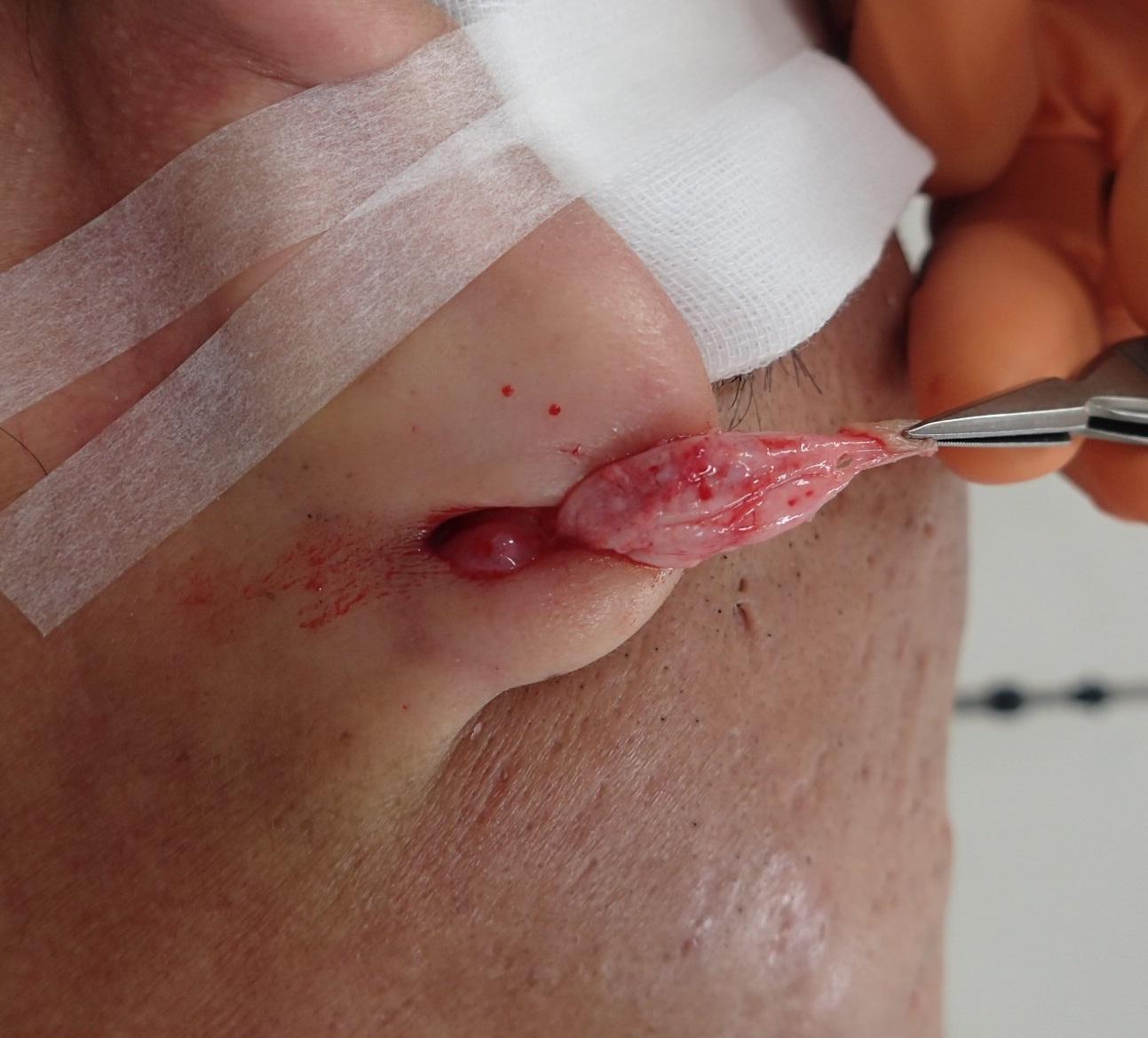 術中(粉瘤被膜を摘出)