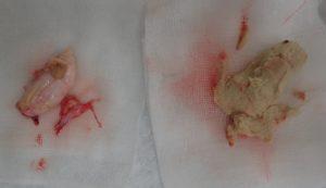 摘出された粉瘤(右 内容物・左 被膜)