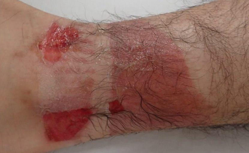 初診時(右下腿)