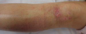 加療後8日(下腿正面)