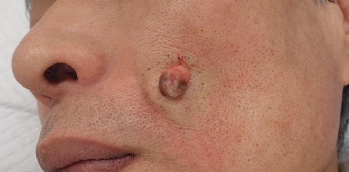 術中(被膜ごと摘出された粉瘤)