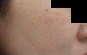 なつい式湿潤療法の説明 加療後1か月