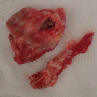 摘出された粉瘤被膜